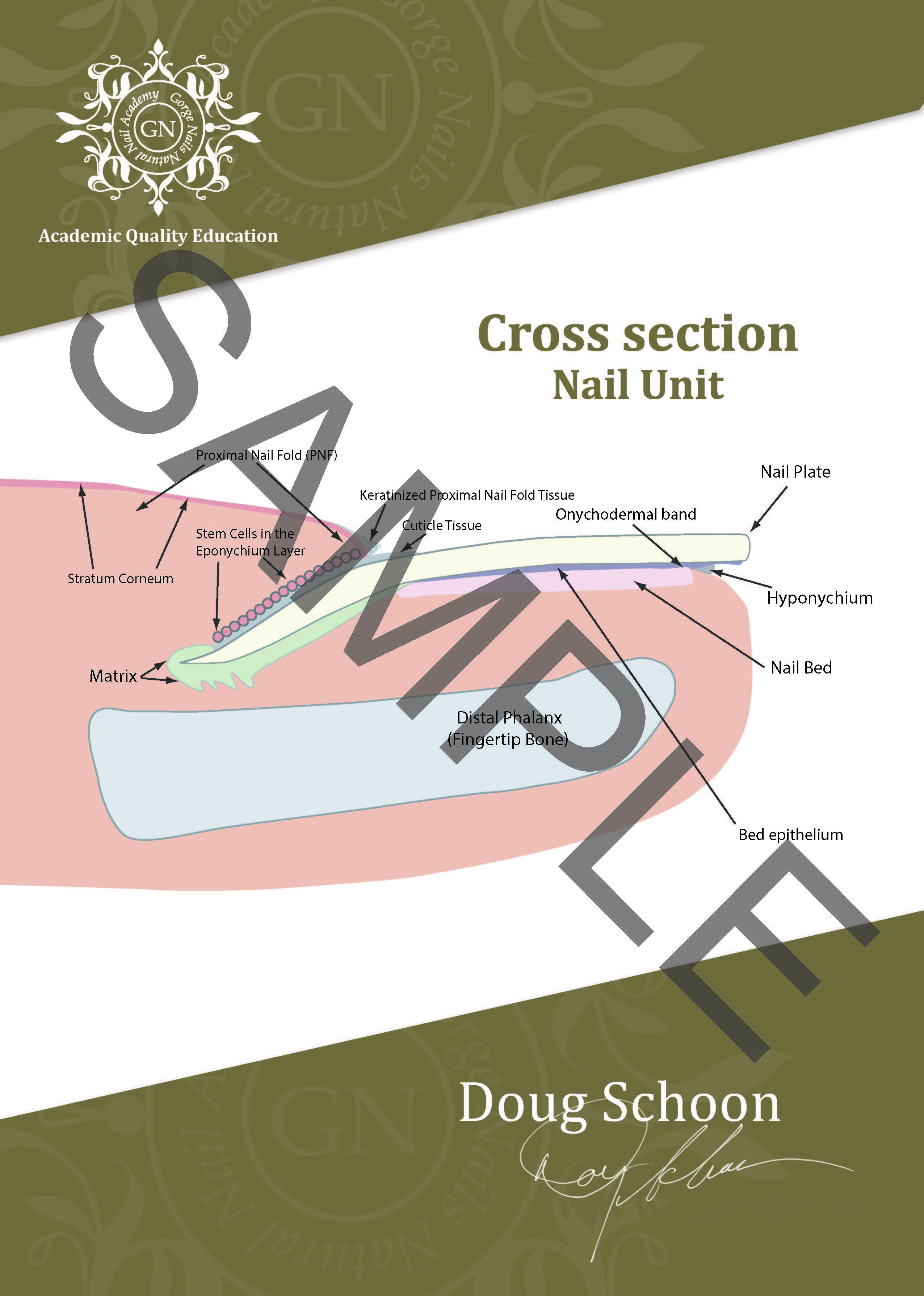 Cross section Nail Unit A4 Poster ENG 1